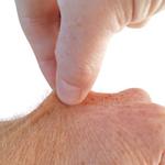 Hautfaltentest